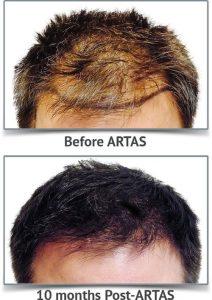 artas-1