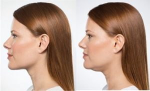 kybella-before-and-after-1