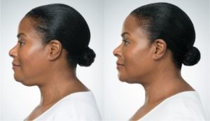 kybella-before-and-after-2