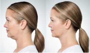 kybella-before-and-after-4