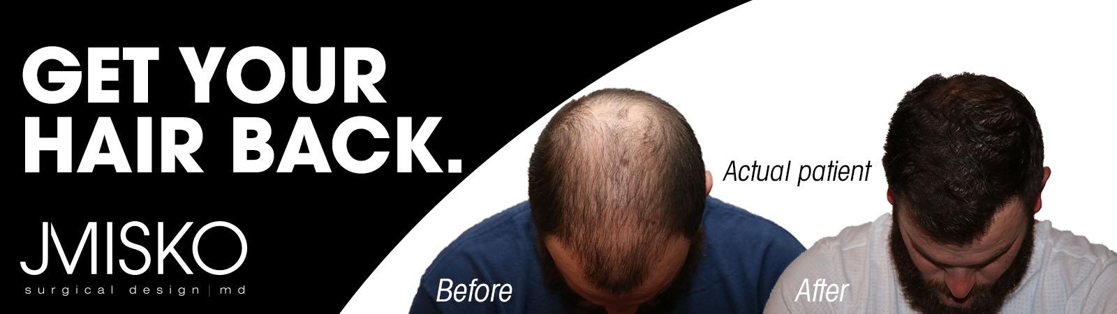 Hair Loss Transformation Alpha Media October Jmisko